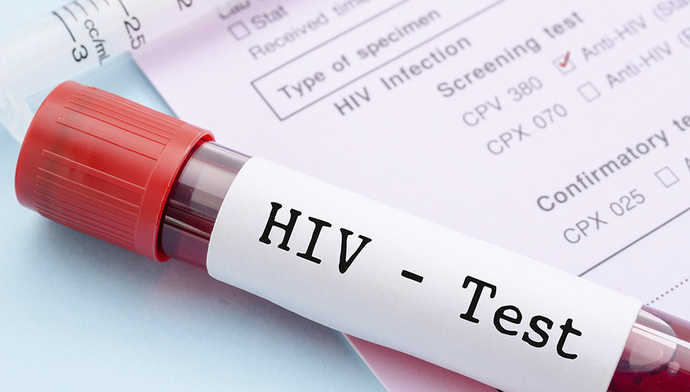 Sample blood collection tube with HIV test label. Photo: Adobe Stock